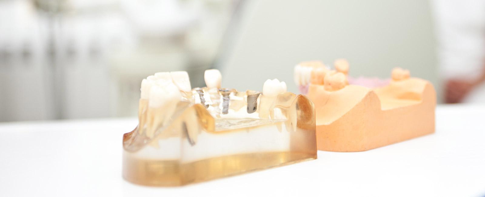 implantologie-potsdam